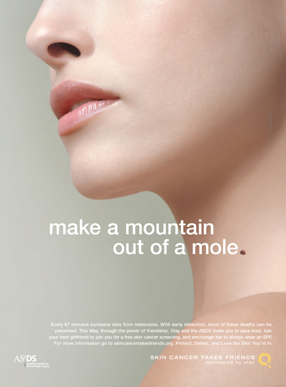 Skin cancer mountain mole s